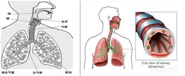 导致支气管哮喘的诱因都有哪些?