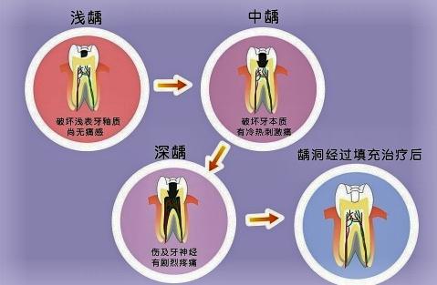 口腔组织病理学牙体组织结构图
