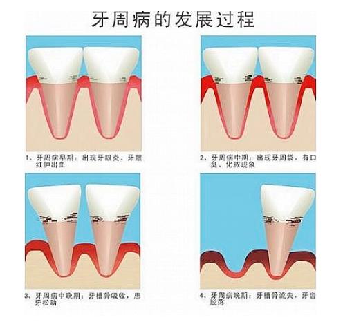 牙周病是我国成年人失牙的首位原因
